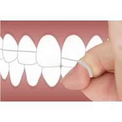 牙齒護理及保健方法