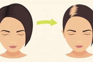 化學染髮、洗髮、護髮產品導致脫髮問題?